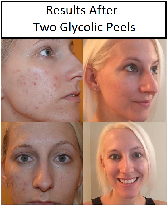 Gasoline reccomend Facial peels with glycolic acid