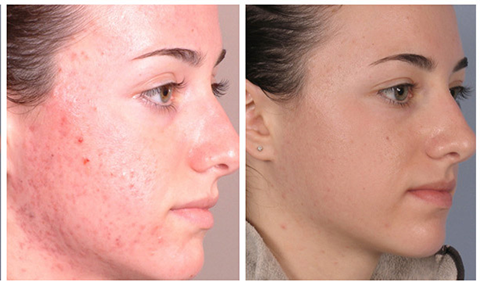 Z reccomend Facial peels with glycolic acid
